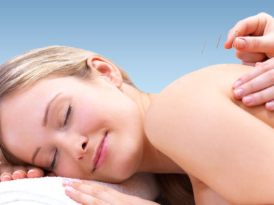 acupuncture-sedona-az-spa-namti