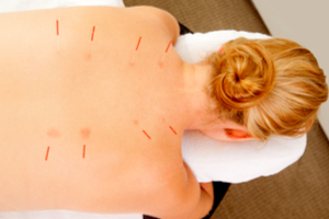 TCM-acupuncture-sedona-spa-NAMTI